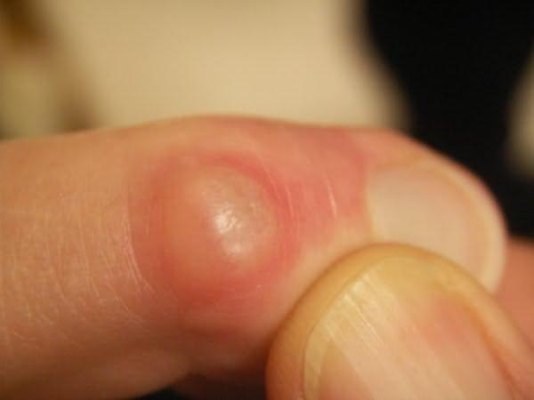az ujjak ízületi fájdalmától hogyan és hogyan kell kezelni a lábízületi gyulladást