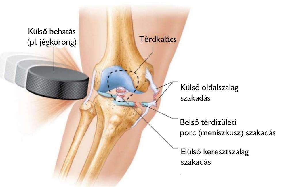 térdízületi fájdalom eltávolítása