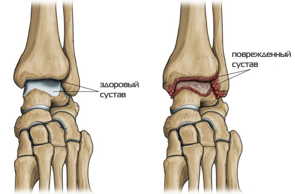 a gerinc ízületeinek deformáló artrózisa)
