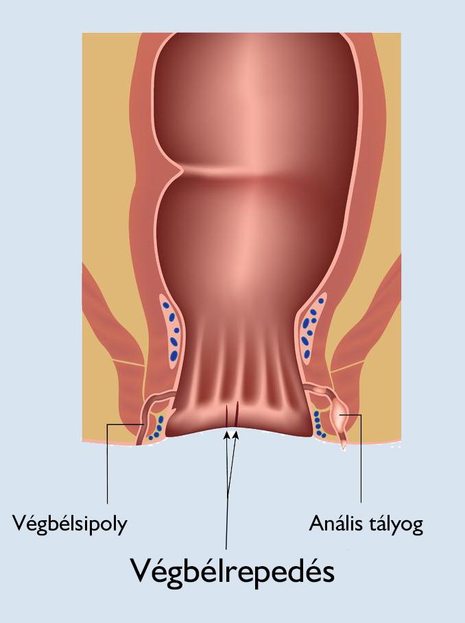 kenőcsök térdízület osteoporosisához