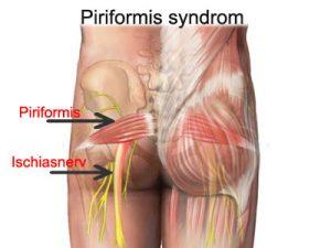 csípőfájdalom 30 éves korban a vállízület ragasztásainak és izmainak kezelése