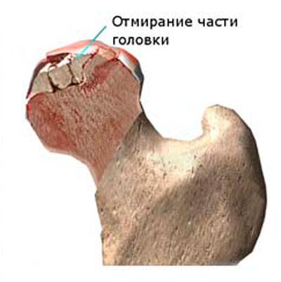 csípőízület kezelése sóval