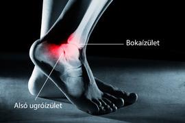 hogyan lehet csökkenteni a bokaízület fájdalmát)