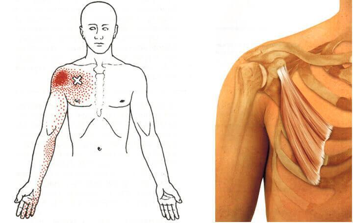 mellkasi gerinc csontritkulása gyógyszeres kezelés)
