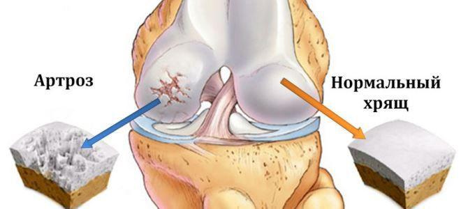 gonarthrosis 2 a térdízület kezelése 3 fok
