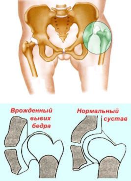 Csípő diszplázia (a csípőcsont viselkedése)