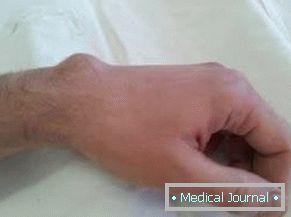 Kúpok az ujjain ízületi gyulladás. Az ujjak ízületeinek növekedési okai