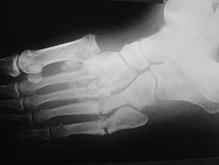 lazarevsky arthrosis kezelése)