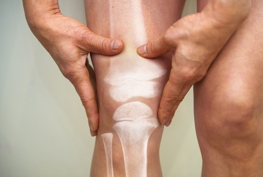 artrózis kezelése 4 fokkal térd jön ki az ízületből