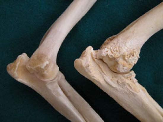 csípőízület ii. fokozatának osteoarthrosis fáradtság és ízületi fájdalmak